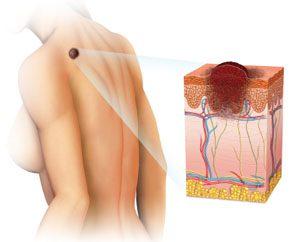 El cáncer de piel y su cirugía