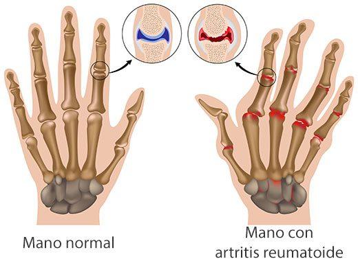 Direferencias entre una mano normal y una con artritis reumatoide