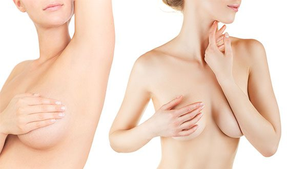Vías para aumento de senos