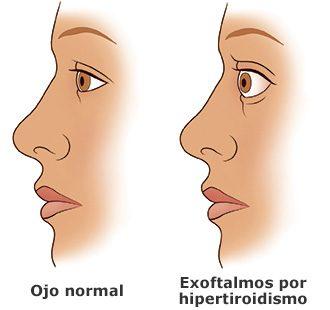 exoftalmos por hipertiroidismo