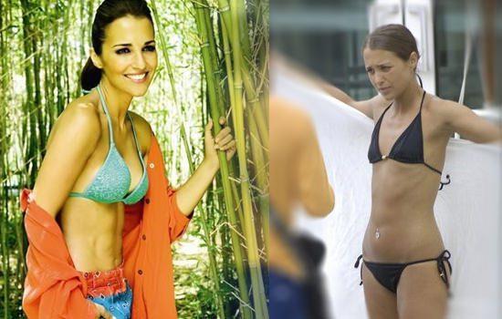 Aumento de senos de famosas antes y después