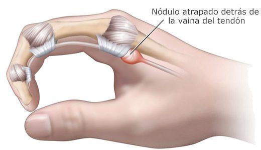 Cirugía del dedo en resorte