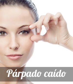 Ptosis palpebral, causas y tratamiento