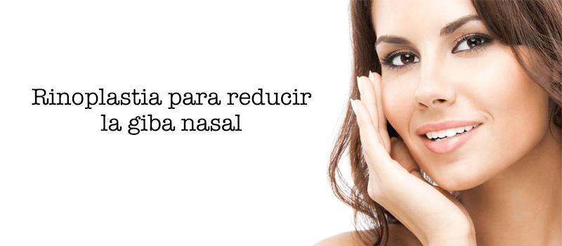 Rinoplastia para reducir la giba nasal