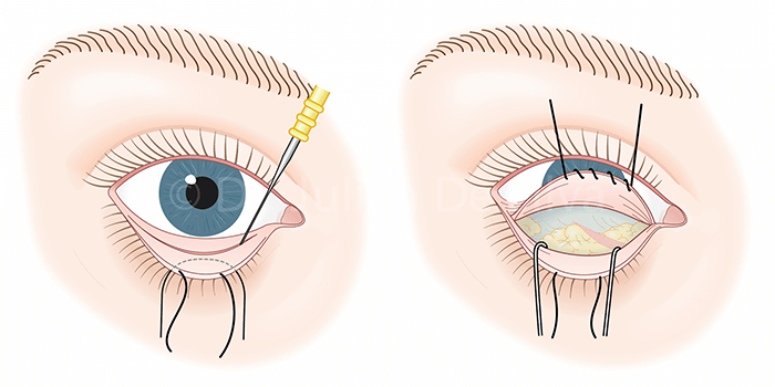 Operación de bolsas en los ojos