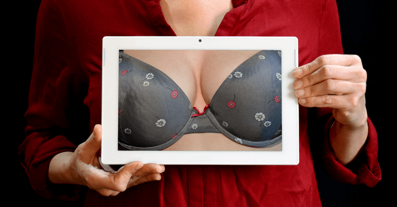 Breast lift by mastopexy with prosthesis