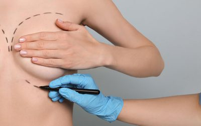 Breast augmentation and lift in Madrid