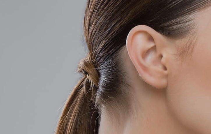 Otoplastia o corrección de orejas