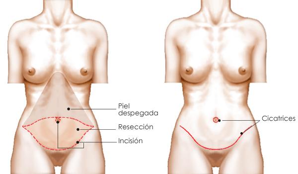 la mejor cirugía para eliminar la grasa del vientre